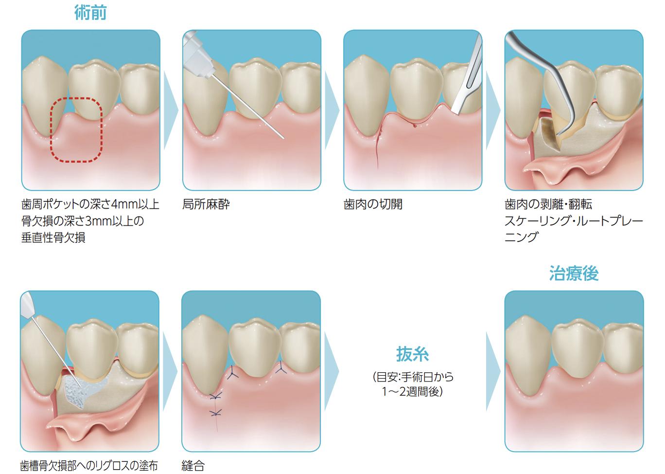 方 病 治し 歯 周